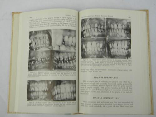 1960s vintage dentistry technical journal periodontal therapy w/photos