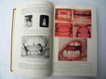 Kronfeld's Histopathology of the Teeth and Their Surrounding Structures