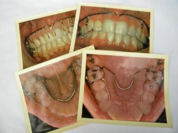 lot four vintage full color glossy dental photographs 8.5'' x 10.5''