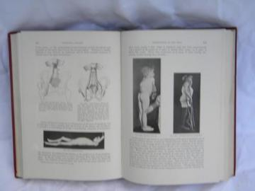 old 1920 medical text orthopedic surgery from doctor's library w/engravings
