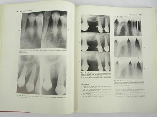 vintage medical dental books on clinical dentistry Mouth Rehabilitation