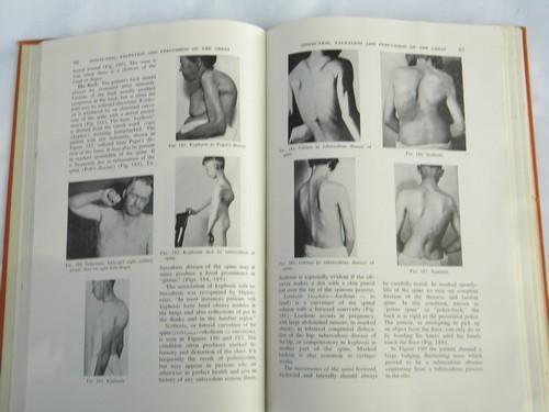 vintage old illustrated medical book w/lots of photos of abnormalities